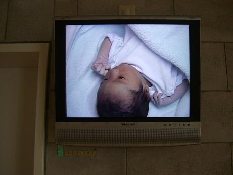 出産後すぐのモニター写真(赤ちゃん)