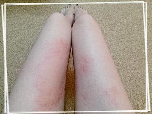 大人のりんご病で足に湿疹