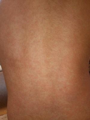 突発性発疹の画像(背中)