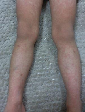 突発性発疹の画像(脚)