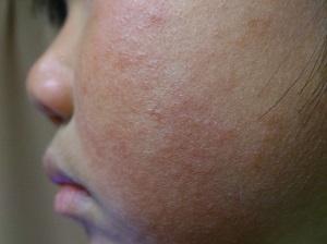 突発性発疹の画像(顔)