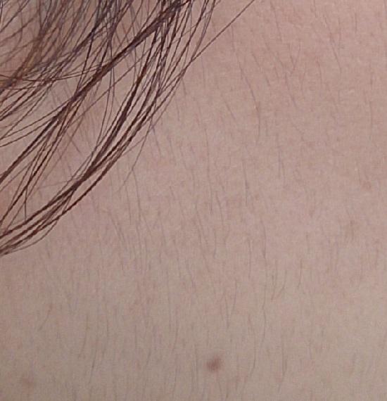 顔にはえている産毛の写真