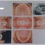 歯の矯正日記①~8歳息子矯正歯科ではじめました