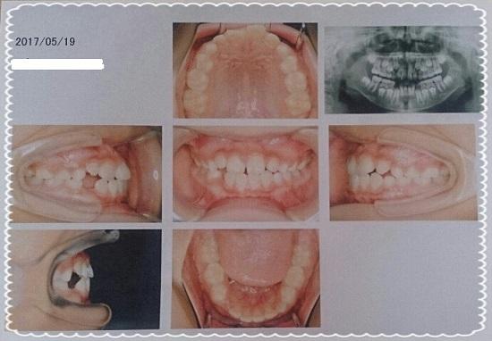 子供の歯の矯正