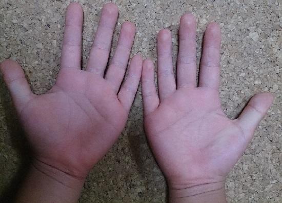 手足口病の写真(手のひら)