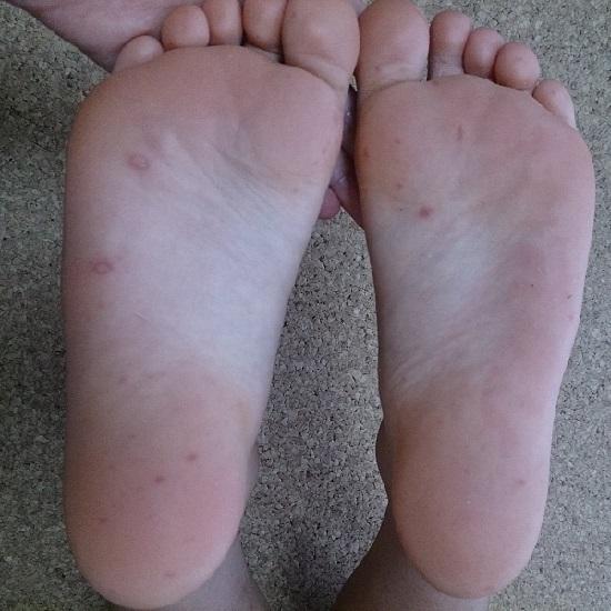 手足口病の写真(足裏)