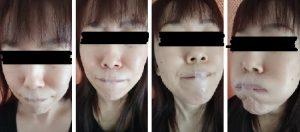 口呼吸防止テープ「ねむるん」を貼った女性
