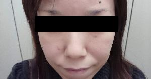 湘南美容外科クリニックでの顔脱毛